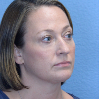 35-44 year old woman treated with Under Eye Enhancement after 3495925