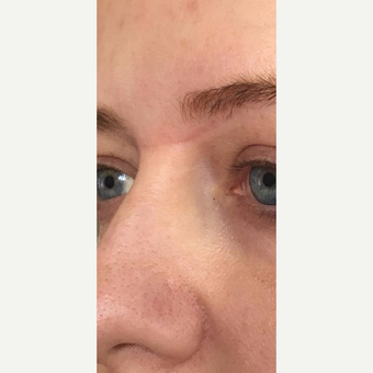 25-34 year old woman treated with Microneedling after 2881650