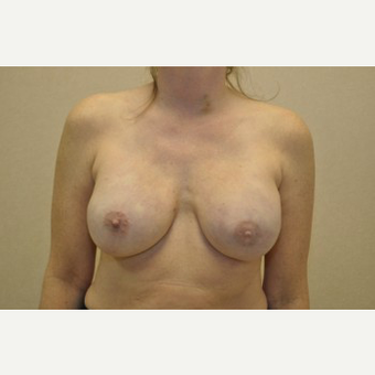 35-44 year old woman treated with Breast Reconstruction after 3104047