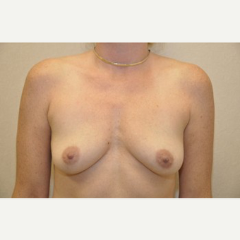 35-44 year old woman treated with Breast Reconstruction before 3104047