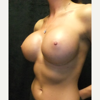 25-34 year old woman treated with Breast Augmentation after 3163749
