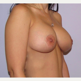 34 year old mother underwent breast augmentation with 360 cc high profile saline implants. after 3467879