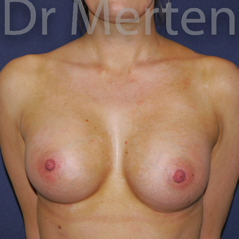 25-34 year old woman treated with Breast Augmentation after 3551678