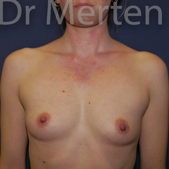 25-34 year old woman treated with Breast Augmentation before 3551678