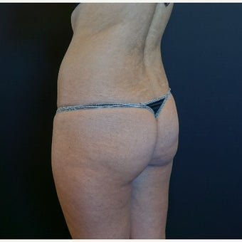 25-34 year old woman treated with Butt Implants and Fat Transfer before 2530358