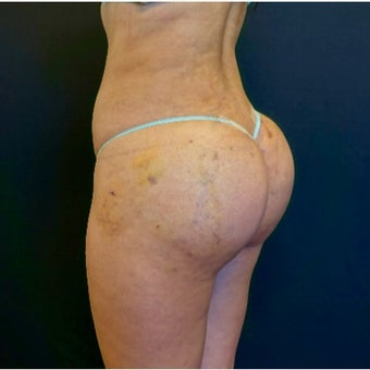 25-34 year old woman treated with Butt Implants and Fat Transfer after 2530358