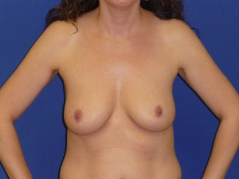 Breast Lift with Implants before 935812