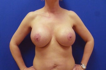 Breast Lift with Implants after 935812