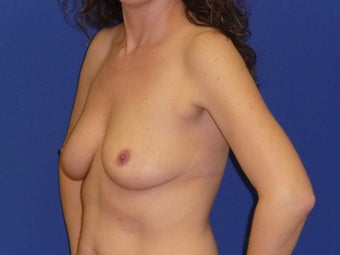 Breast Lift with Implants 935812