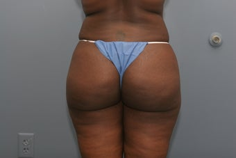 Brazilian Butt lift 3 months after surgery