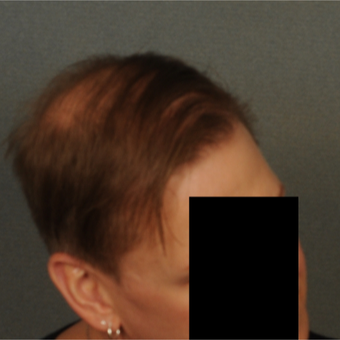 35-44 year old man treated with Hair Transplant after 3418522