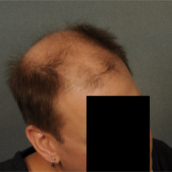 35-44 year old man treated with Hair Transplant before 3418522