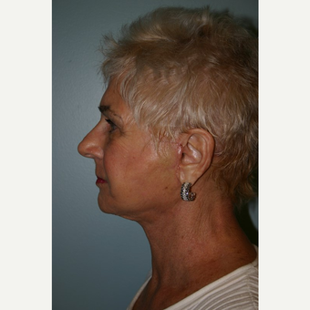 75 year old woman treated with Facelift after 3442671