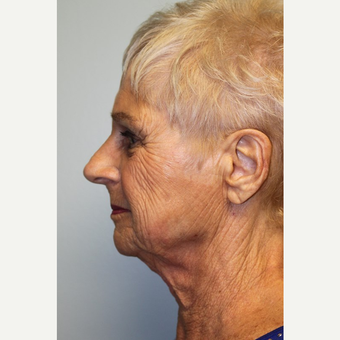 75 year old woman treated with Facelift before 3442671