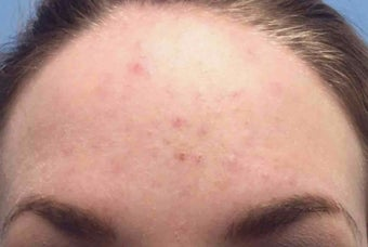 25-34 year old woman treated with Chemical Peel before 3246054