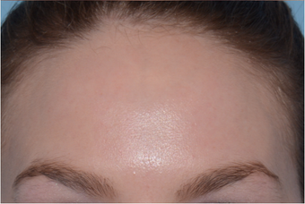 25-34 year old woman treated with Chemical Peel after 3246054