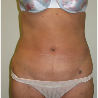 25-34 year old woman treated with Liposculpture after 3846263