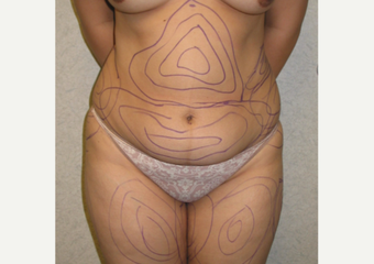 25-34 year old woman treated with Liposculpture before 3846263
