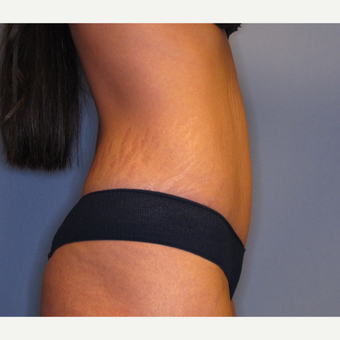 25-34 year old woman treated with Tummy Tuck after 2879736