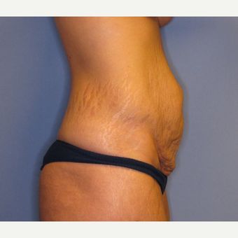 25-34 year old woman treated with Tummy Tuck before 2879736