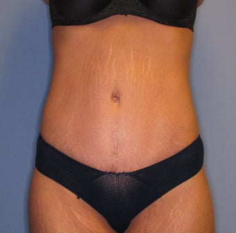25-34 year old woman treated with Tummy Tuck 2879736