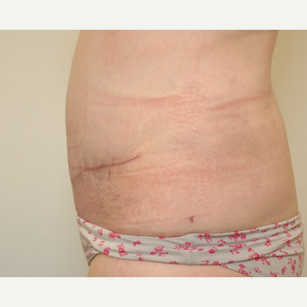 Tummy Tuck after 3108747