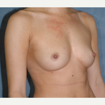 29 Year-Old Breast Augmentation before 3814221