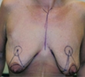 Breast Lift with Implants before 2149689