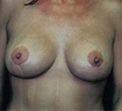 Breast Lift with Implants after 2149689