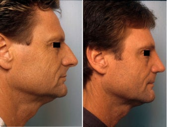 Rhinoplasty before 139110