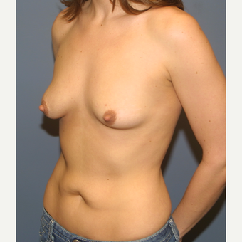 18-24 year old woman treated with Breast Lift with Implants before 3454727