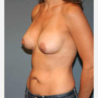 18-24 year old woman treated with Breast Lift with Implants after 3454727