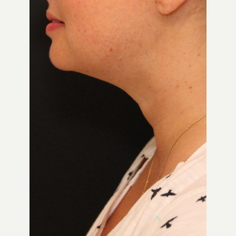 Chin Liposuction after 3617119