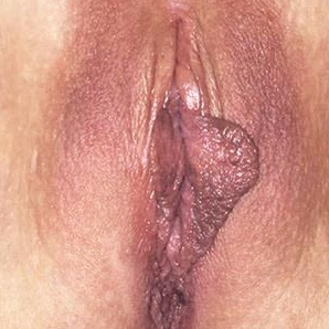 35-44 year old patient treated with Labiaplasty before 3453453