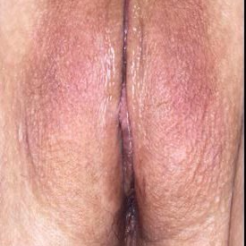 35-44 year old patient treated with Labiaplasty after 3453453