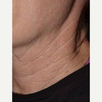 Belotero-Neck Lines before 1832907