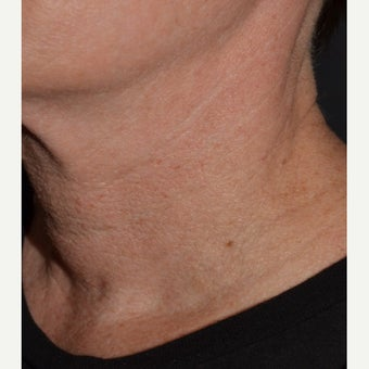 Belotero-Neck Lines after 1832907