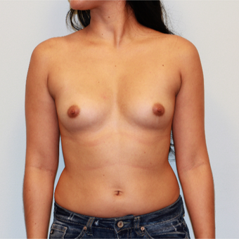 18-24 year old woman treated with Breast Augmentation before 3412522