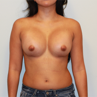 18-24 year old woman treated with Breast Augmentation after 3412522