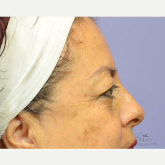 45-54 year old woman treated with Eyelid Surgery before 3329609