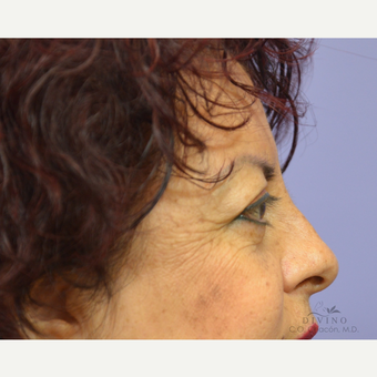 45-54 year old woman treated with Eyelid Surgery after 3329609