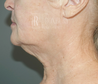 65-74 year old woman treated with Non-Surgical Neck Lift after 3777573