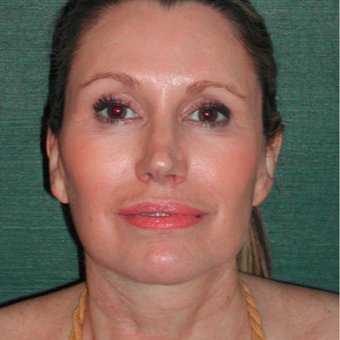 45-54 year old woman treated with Facelift after 3417485