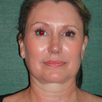 45-54 year old woman treated with Facelift before 3417485