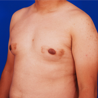 Man Treated with Male Breast Reduction Surgery before 3458628