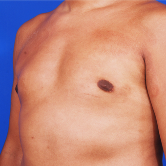 Man Treated with Male Breast Reduction Surgery after 3458628