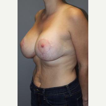 25-34 year old woman treated with Breast Implants after 3129102