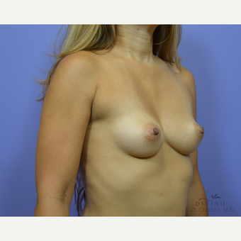 35-44 year old woman treated with Breast Augmentation before 3386425