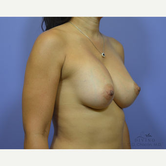 35-44 year old woman treated with Breast Augmentation after 3386425