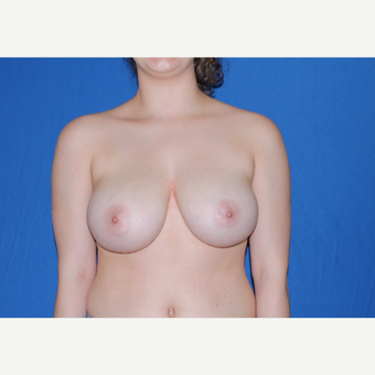 18-24 year old man treated with Breast Reduction before 3769671